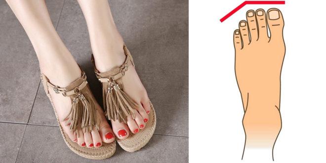 Foot Shapes