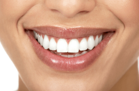 does white teeth mean healthy teeth
